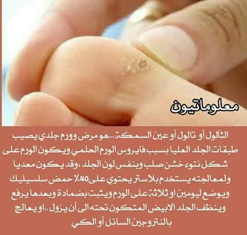 FB_IMG_1492415406767